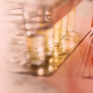 Ανδρολογικό εργαστήριο Ζεγκινιάδου έλεγχος-α-γλυκοσιδάσης