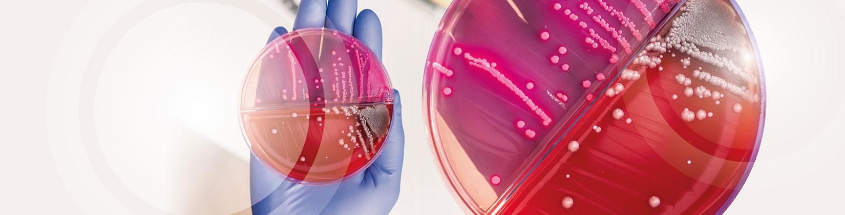 Ανδρολογικό εργαστήριο Ζεγκινιάδου Μικροβιολογία