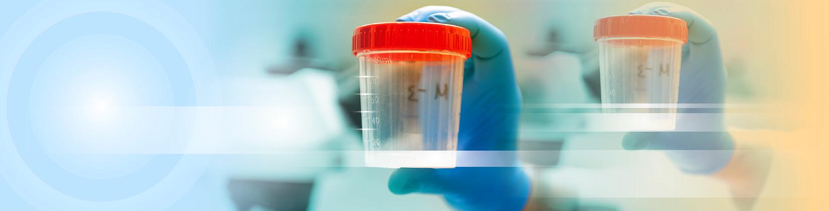 Ανδρολογικό εργαστήριο Ζεγκινιάδου μικροβιολογία σπέρματος